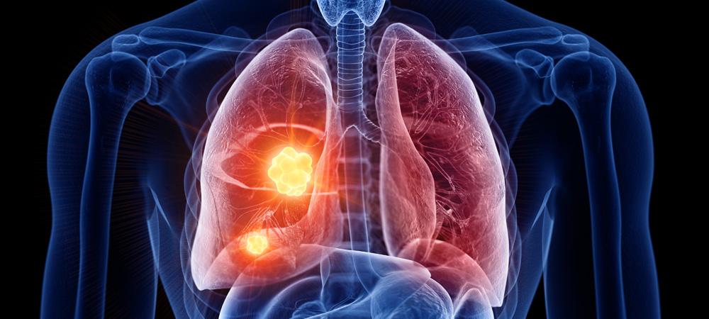 slider-lungs